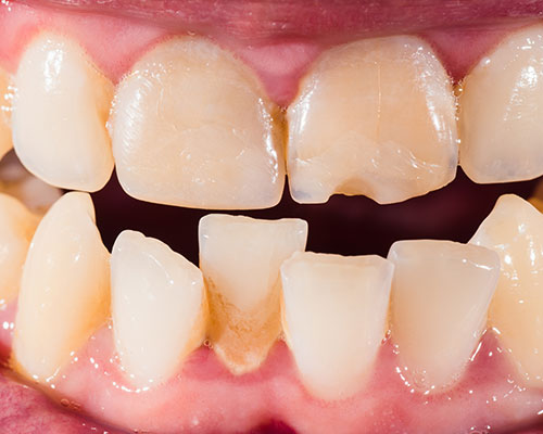 Endodontics | Churchview Dental | Doncaster